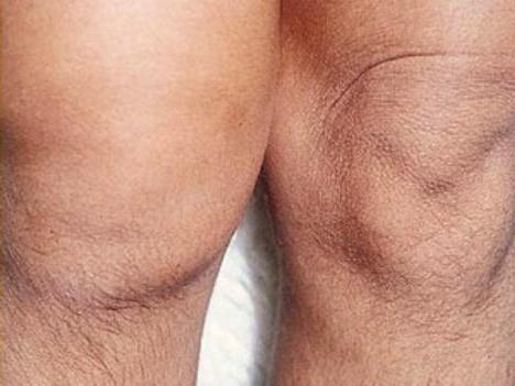 артрит хламидийный лечение гомеопатией
