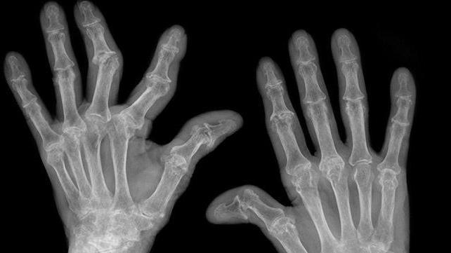 дают ли инвалидность при ревматоидном артрите