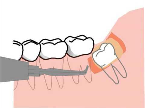 уплотненная гематома после удаления зуба мудрости