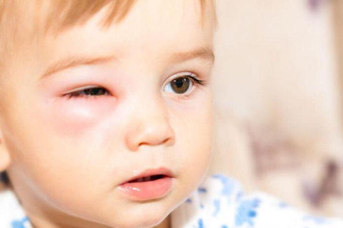 как избавиться от гематомы под глазом