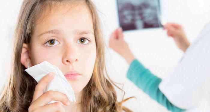 Артрит инфекционно аллергический у детей
