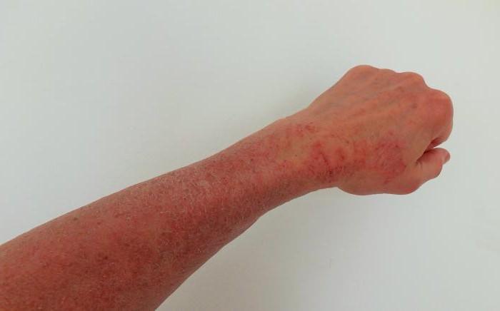 токсико аллергический дерматит фото