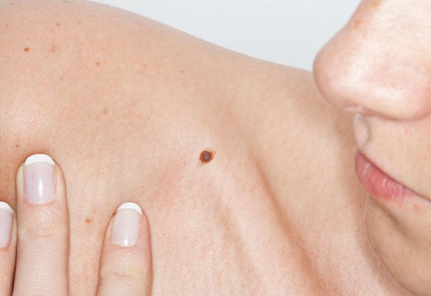 саркома мягких тканей симптомы выживаемость