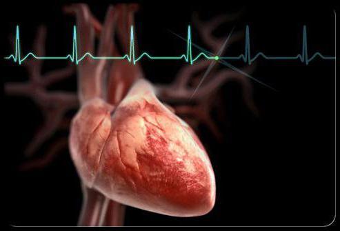 гипертензивная гипертоническая болезнь с преимущественным поражением сердца