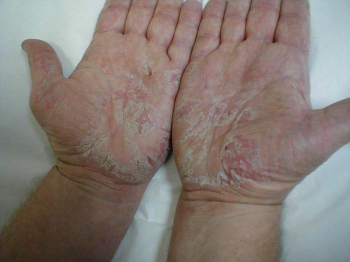 атопический дерматит формы