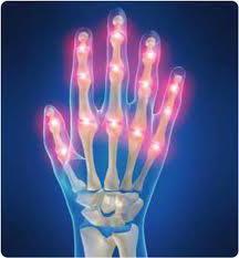 ревматоидного артрита симптомы
