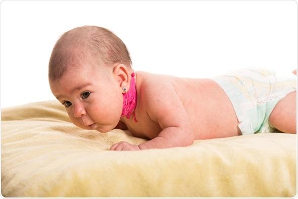 гипотонус новорожденного