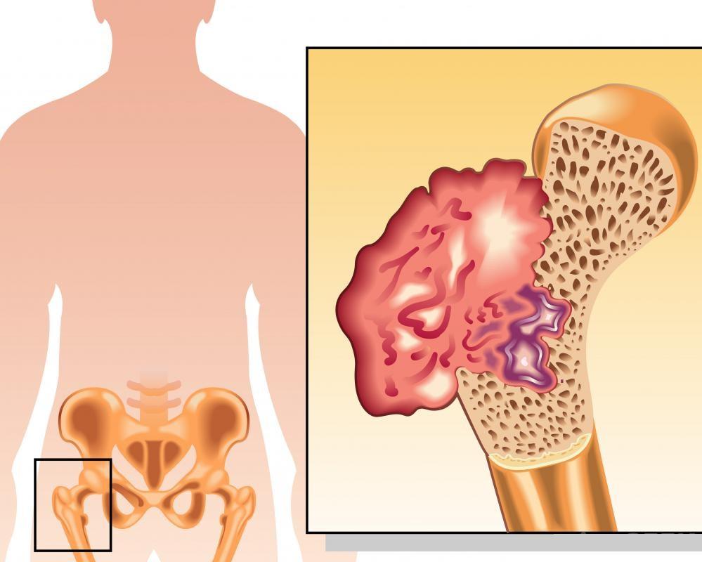 лечение саркомы мягких тканей