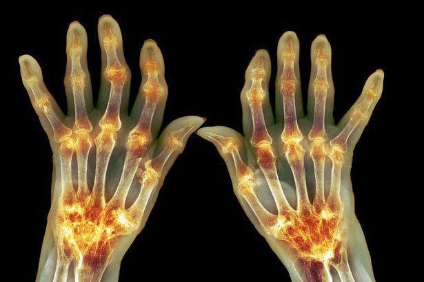 артрит лечит какой врач