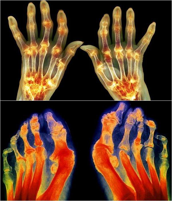 деформирующий ревматоидный артрит