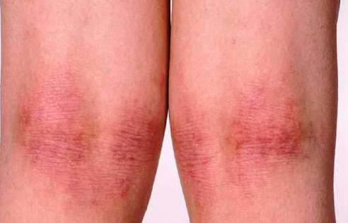 атопический дерматит у детей лечение народными методами