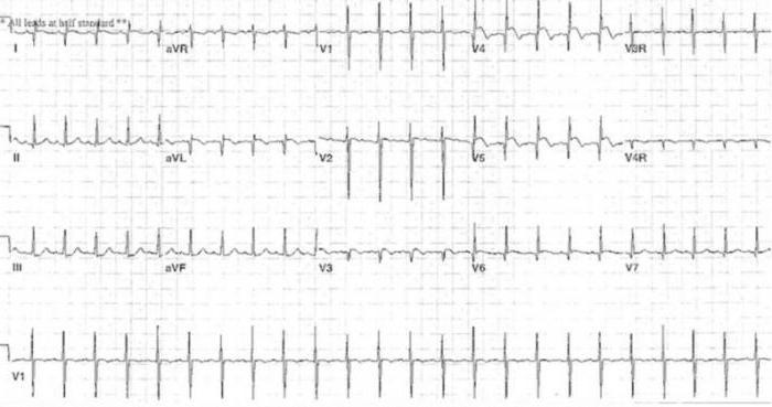 лабильная систолическая артериальная гипертензия