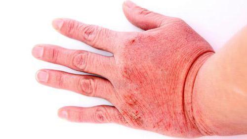 контактный дерматит что такое