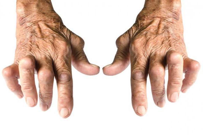 артрит и артроз какой врач лечит