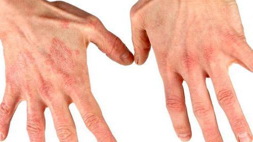 дерматит контактный симптомы
