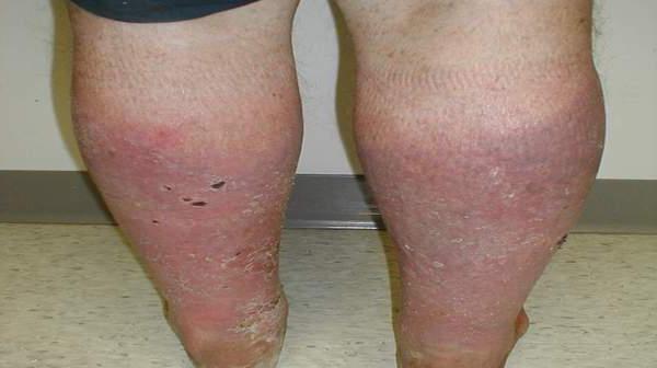 венозный дерматит на ногах лечение народными средствами