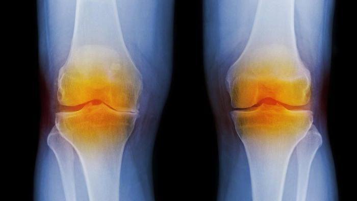 уколы при артрите в сустав
