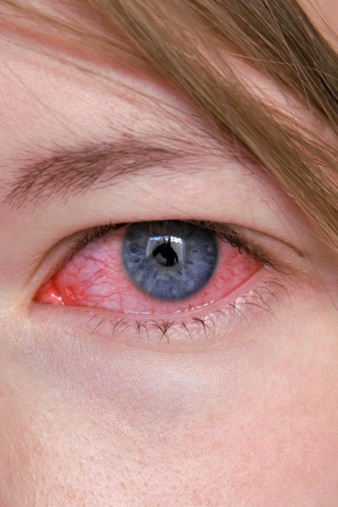 тетрациклиновая мазь глазная