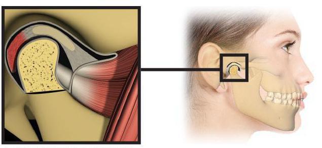 Воспаление челюстно-лицевого сустава симптомы лечение
