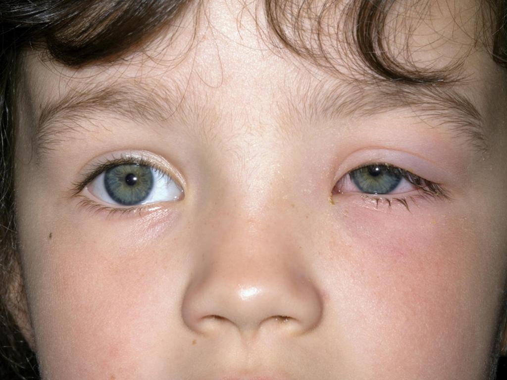 у ребенка опухли глаза и чешутся причины