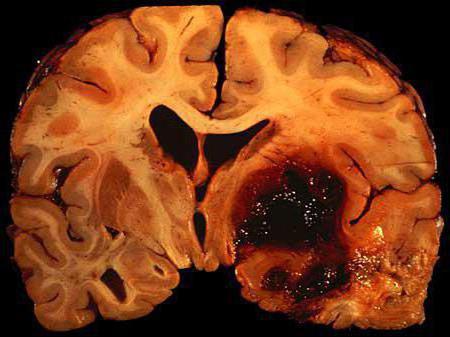 внутримозговая гематома последствия