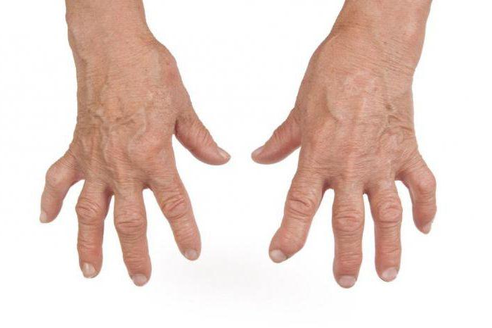 антибиотики при инфекционном артрите