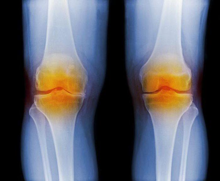 артрит серонегативный