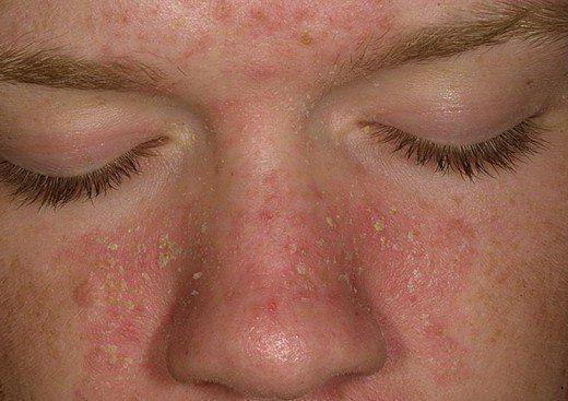 лечение аллергического дерматита на лице