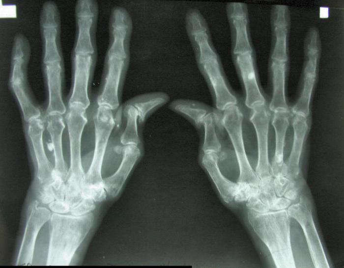 артрит инфекционный лечение