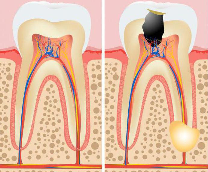гранулема на корне зуба лечение антибиотиками