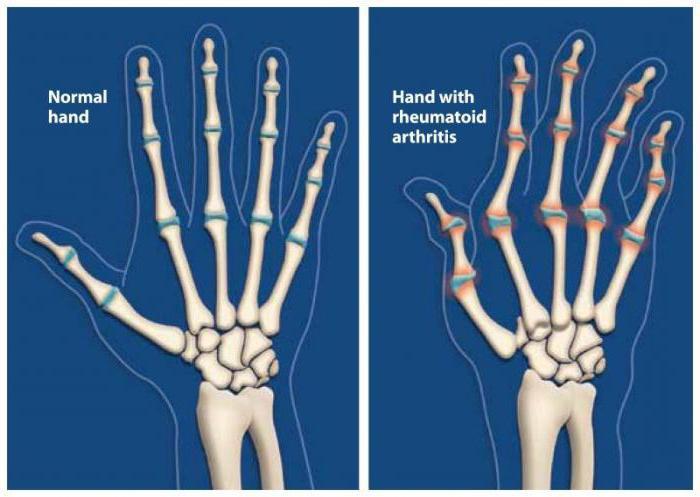 ревматоидный артрит причины возникновения и факторы риска