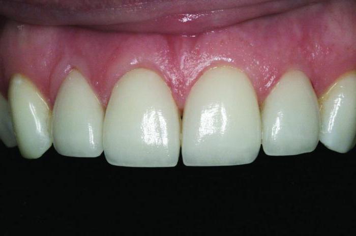 гранулемы зуба лечение народными средствами