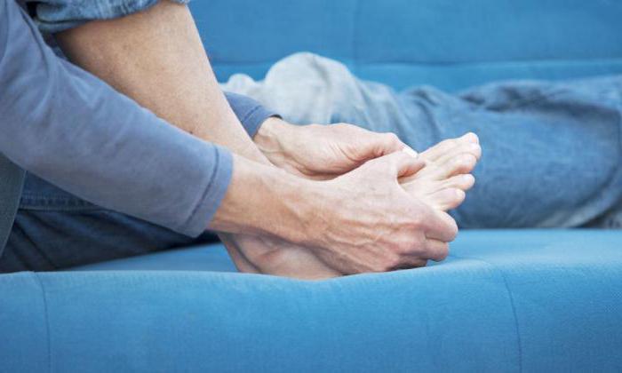 опухоль сустава стопы