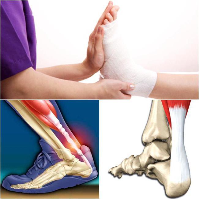 посттравматический артрит коленного сустава лечение