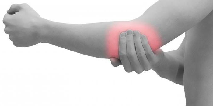 вирусный ревматоидный артрит