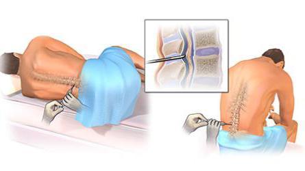 лечение внутричерепная гипертензия