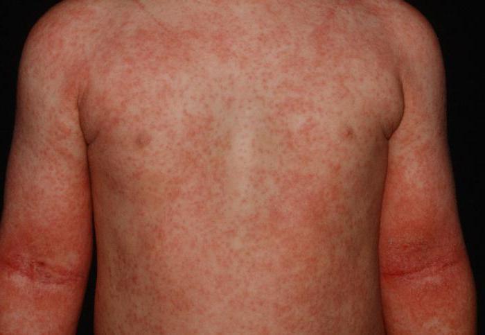 атопический дерматит тяжелая форма