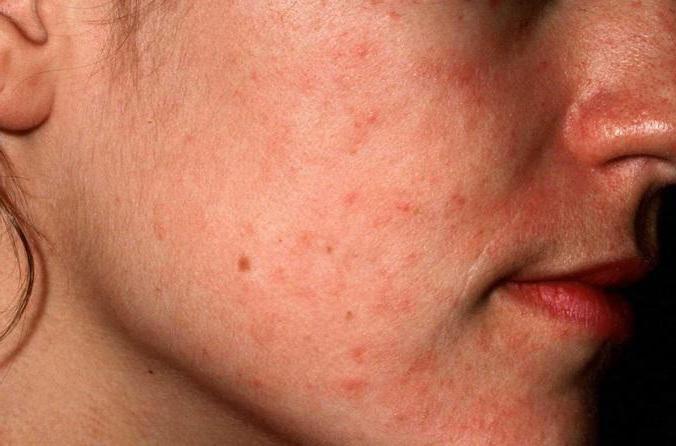 атопический дерматит лечение на лице