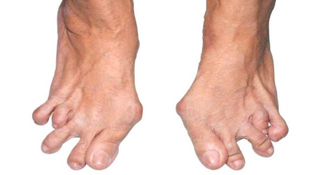 ревматоидный артрит и деформирующий остеоартроз