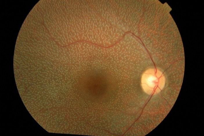 дистрофия сетчатки глаза что это такое