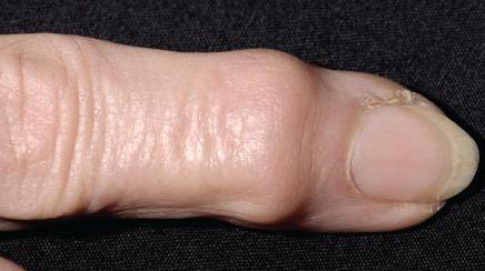 симптомы ревматоидного артрита кистей рук