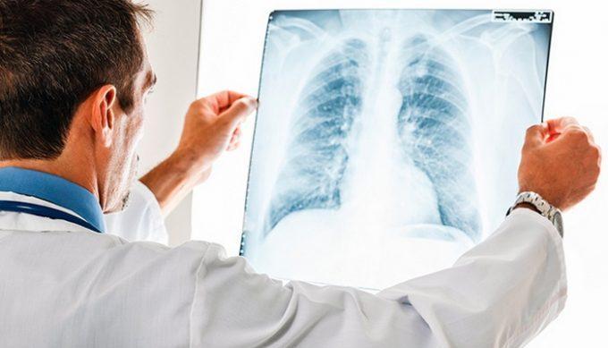 бывает ли казеозная пневмония при туберкулёзе
