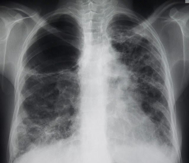 альвеолит легких что это такое