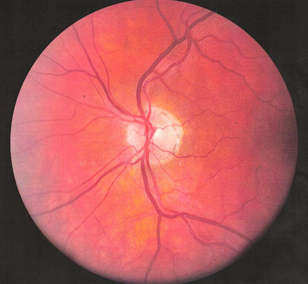 тромбоз вены сетчатки глаза