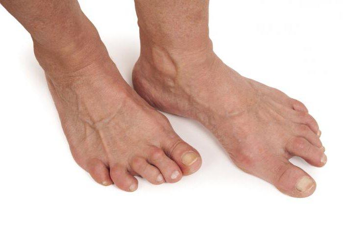 артрит пальцев стопы