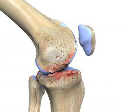 какие уколы делают при артрите