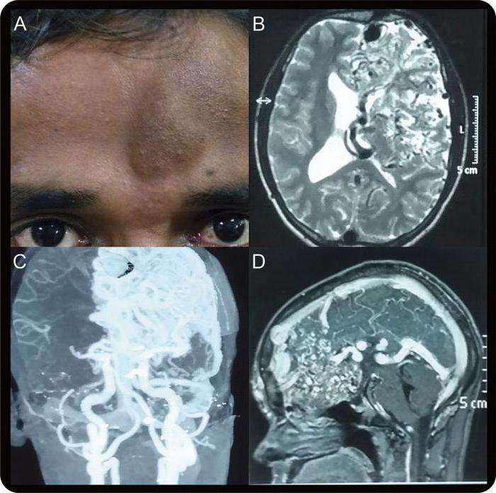 церебральная ангиопатия головного мозга