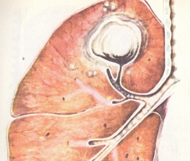 туберкулема верхней доли правого легкого в фазе распада