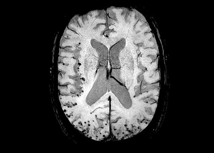 ангиопатия церебральная