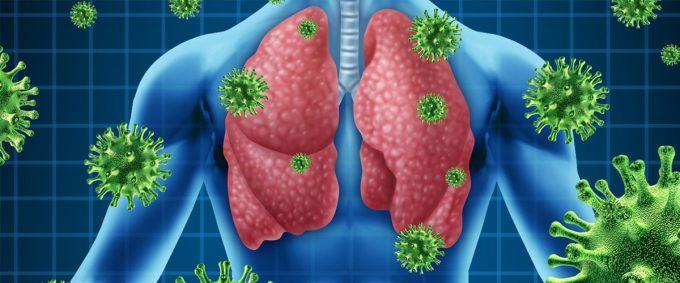 как развивается болезнь пневмония